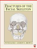 Fractures of the Facial Skeleton 9780723610342