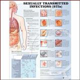 Sexually Transmitted Infections 9781587798498