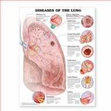 Diseases of the Lung 9781587799082